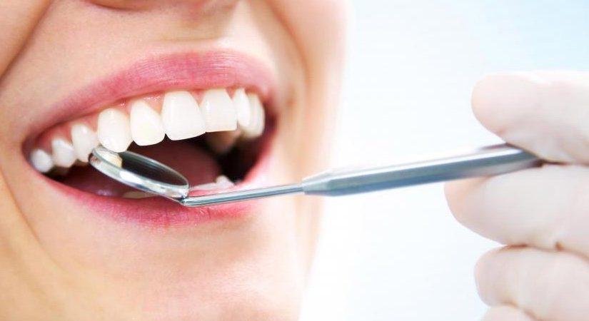 هل قمت بتجربة زراعة الأسنان من قبل؟… تعرف عليها في هذه المقالة