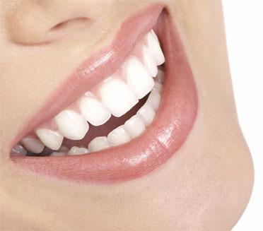 تعرّف على الوسيلة الأفضل للحصول على ابتسامة ساحرة